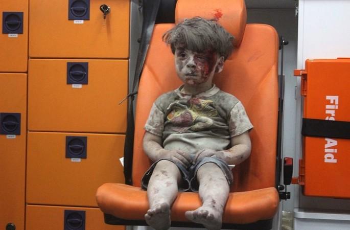 Hình ảnh Omran sau vụ tấn công trên không của chính phủ Syria